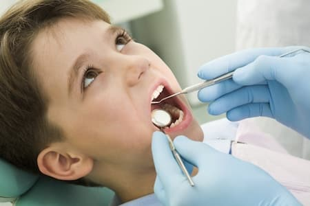 Dental fillings - Dental @ Niddrie Plaza