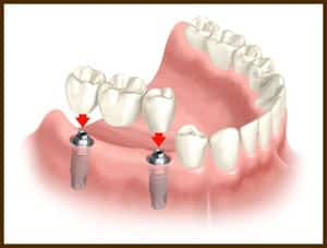 Dental Implant - Bridge