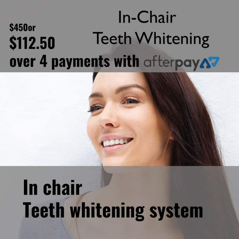 AfterPay Teeth Whitening In Chair